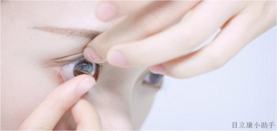 OK镜安不安全?眼科专家告诉你!