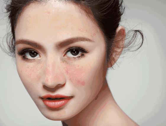 纹身、色斑惹人烦?长春铭医整形超皮秒激光全解决-焦点中国网