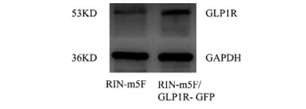 东波教授论文(GLP1R-GFP稳定转染 Rin-m5F 细胞系的构建) 泛商业