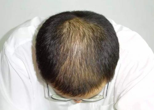 备受脱发人士青睐,HeyBro米诺地尔搽剂效果好吗?
